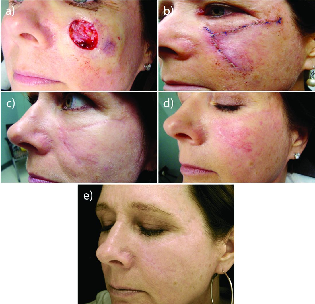 Laser Resurfacing Can Effectively Minimize Post Surgery Scars Mdedge Dermatology