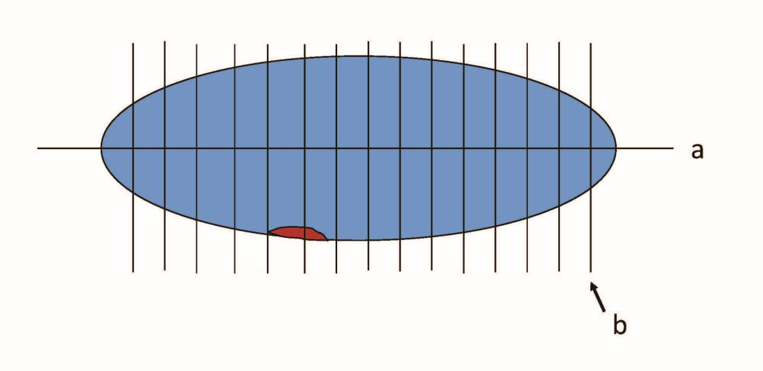 A graphic showing traditional longitudinal sectioning vs. ultrasectioning perpendicular to the longintudinal axis