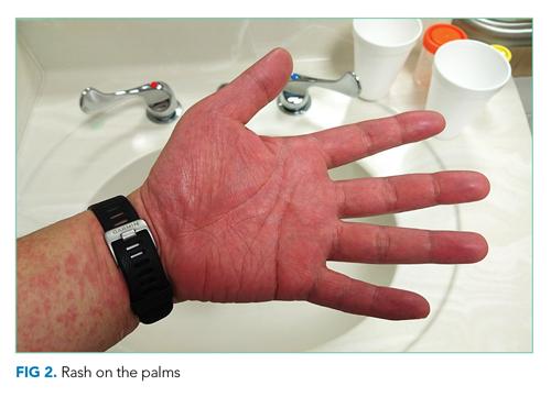 Rash on the palms