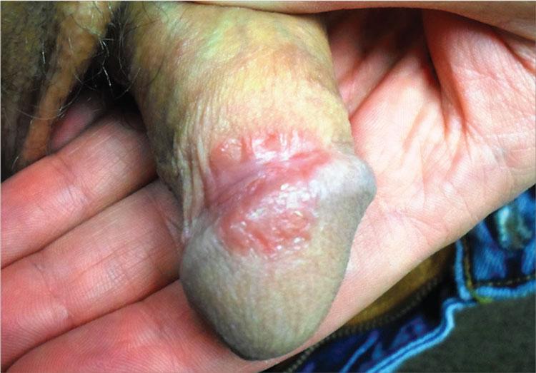 Noninfectious Penile Lesions | Clinician Reviews