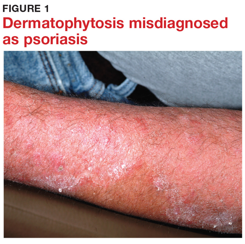 Dermatophytosis misdiagnosed as psoriasis