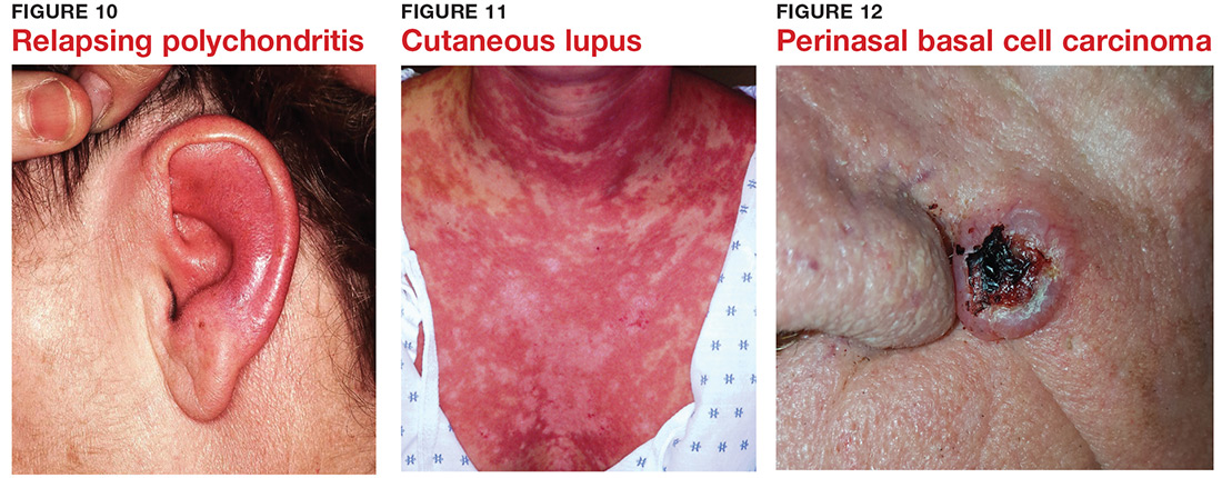 Relapsing polychondritis; Cutaneous lupus; Perinasal basal cell carcinoma