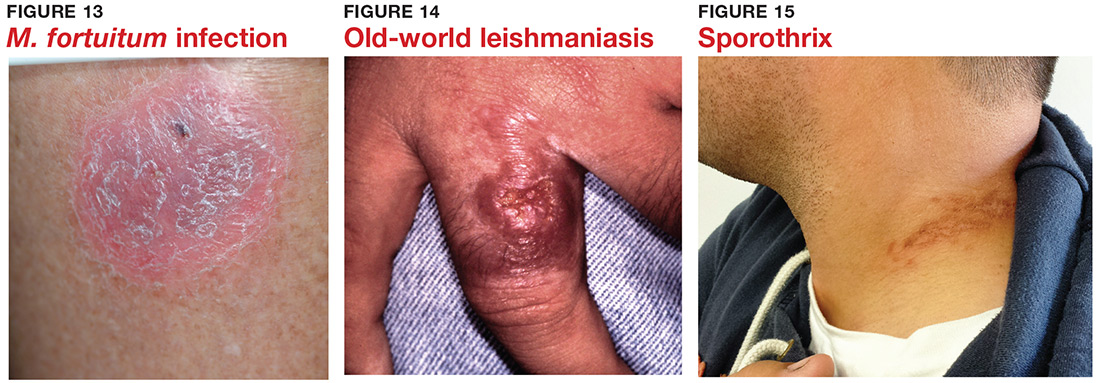 M. fortuitum infection; Old-world leishmaniasis; Sporothrix