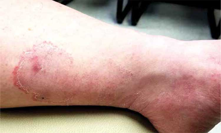 How Do You Solve a Problem Like This Leg Rash?