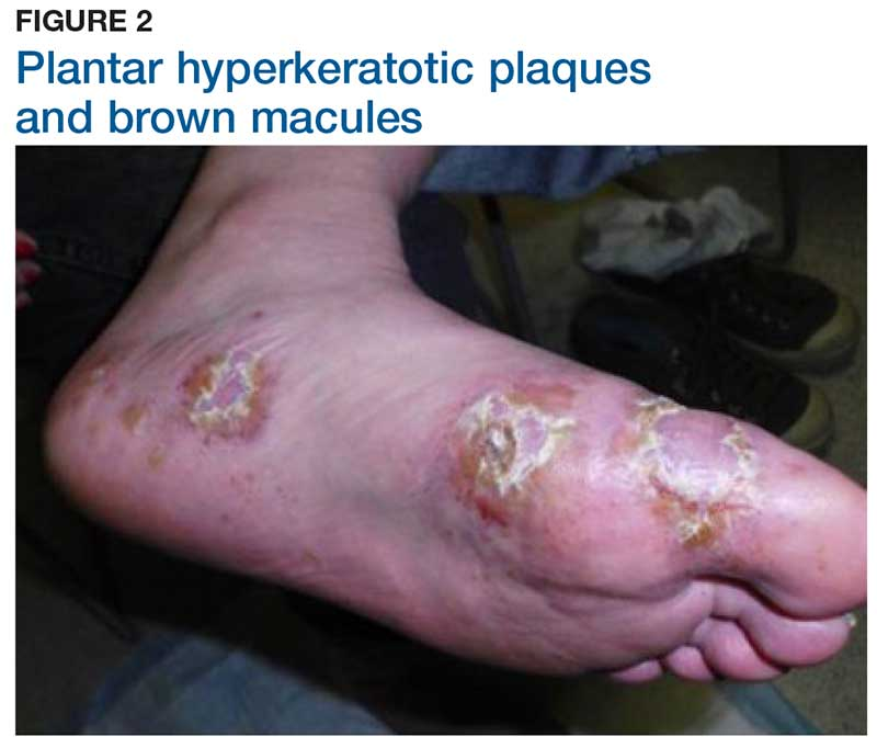 Plantar hyperkeratotic plaques and brown macules