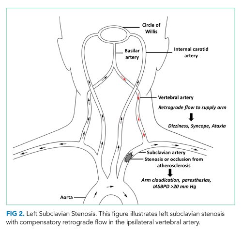 Left Subclavian Stenosis