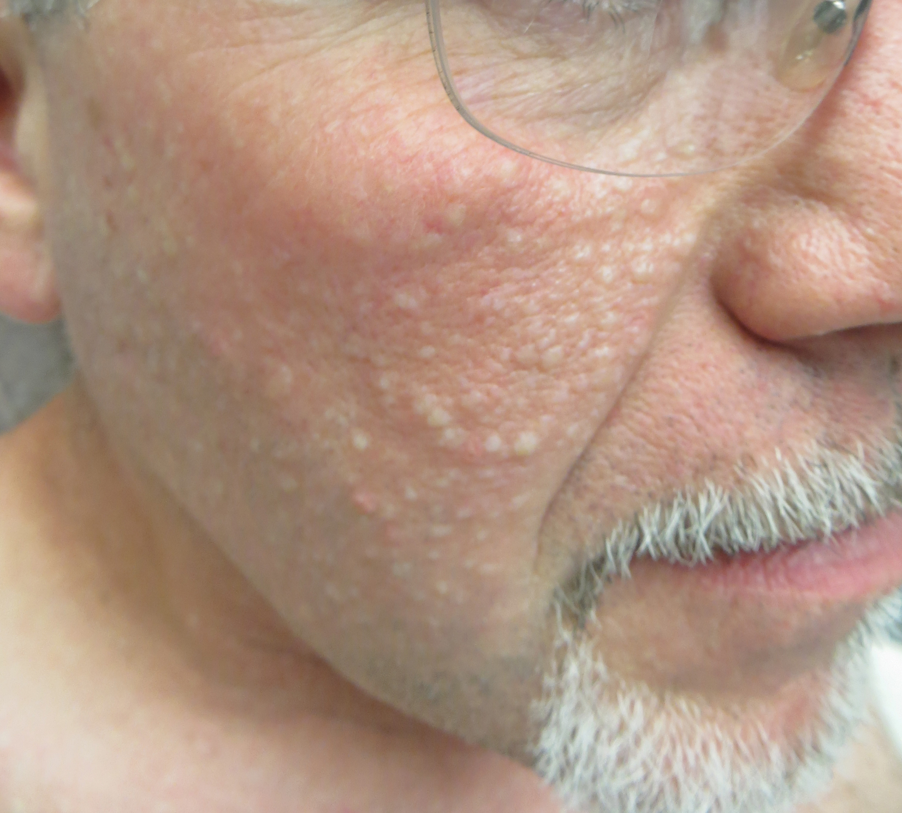 Papules white Possible Causes