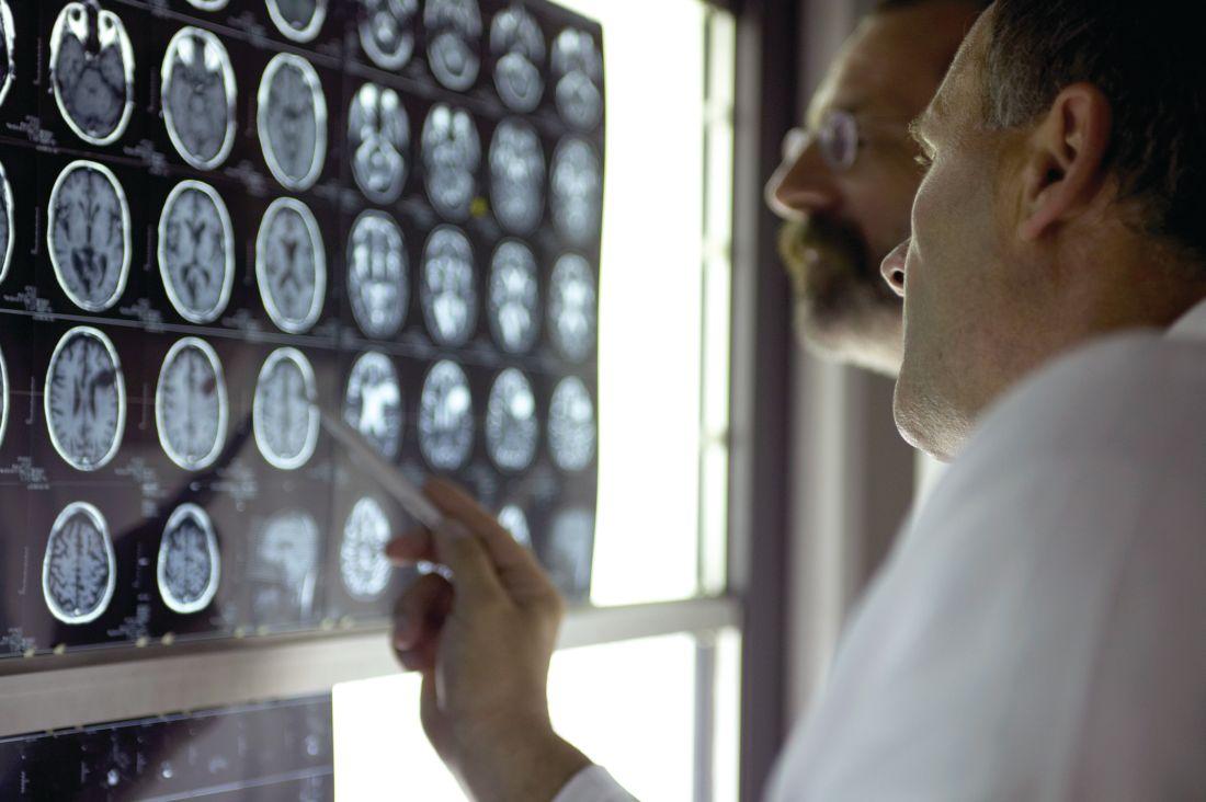 Doctors review brain scans.