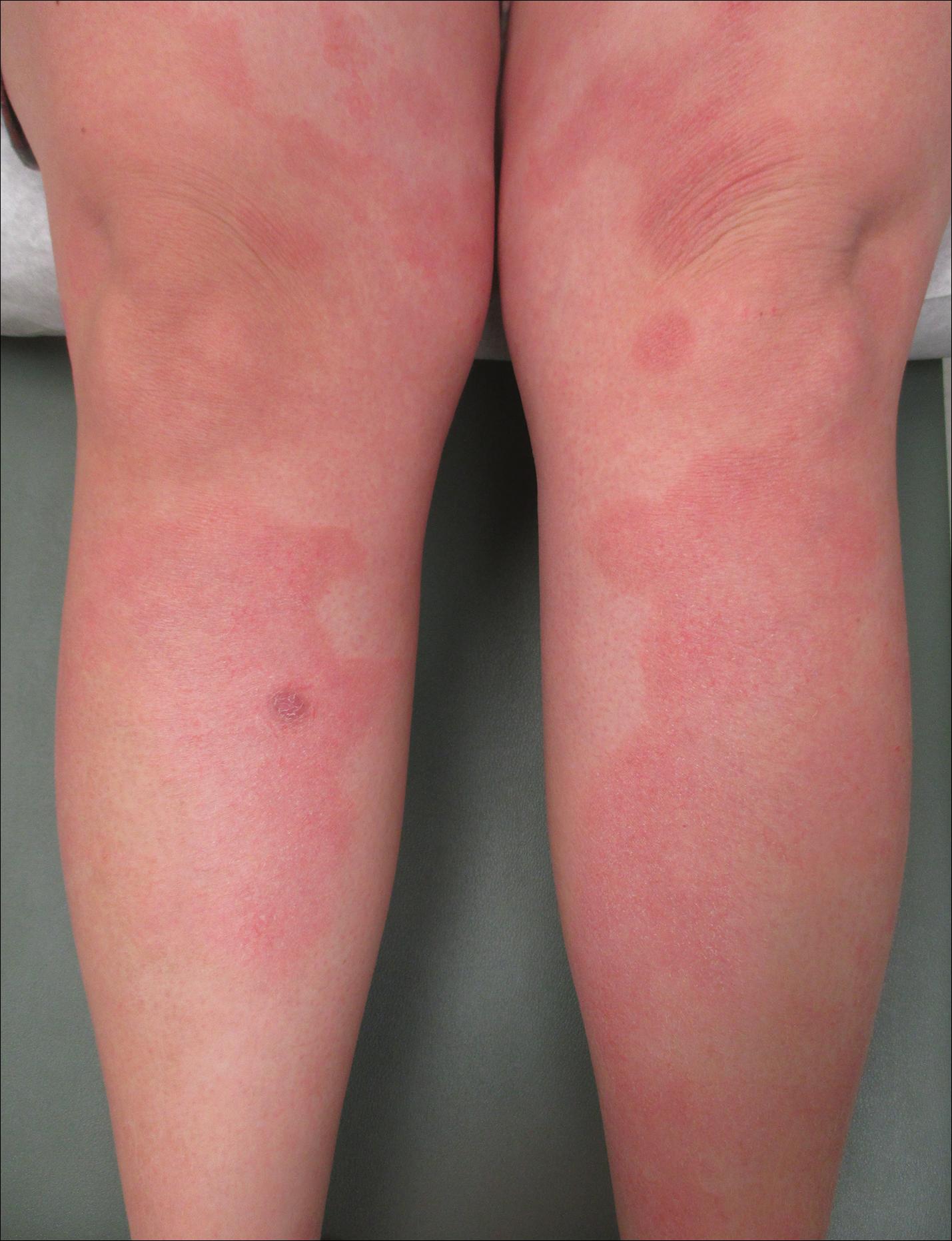 developed psoriasis after pregnancy