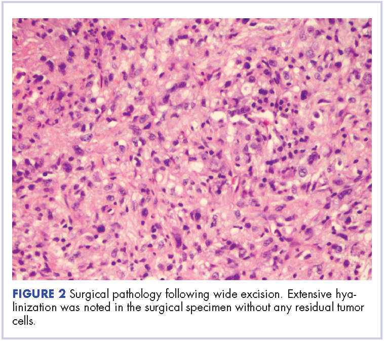 Management Of High Grade Pleomorphic Sarcoma With Colon Metastasis Mdedge Hematology And Oncology