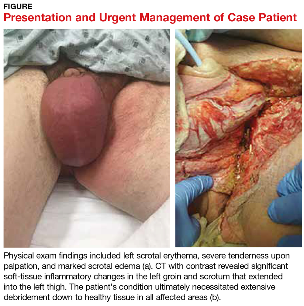 Presentation and Urgent Management of Case Patient image