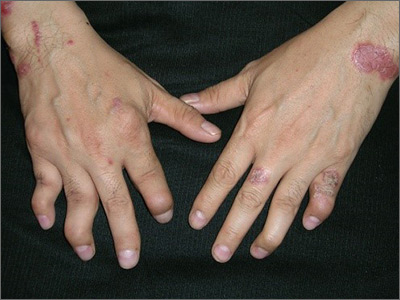 Hand Pain And Rash Mdedge Family Medicine
