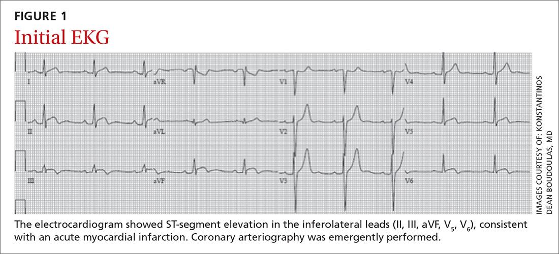 Initial EKG