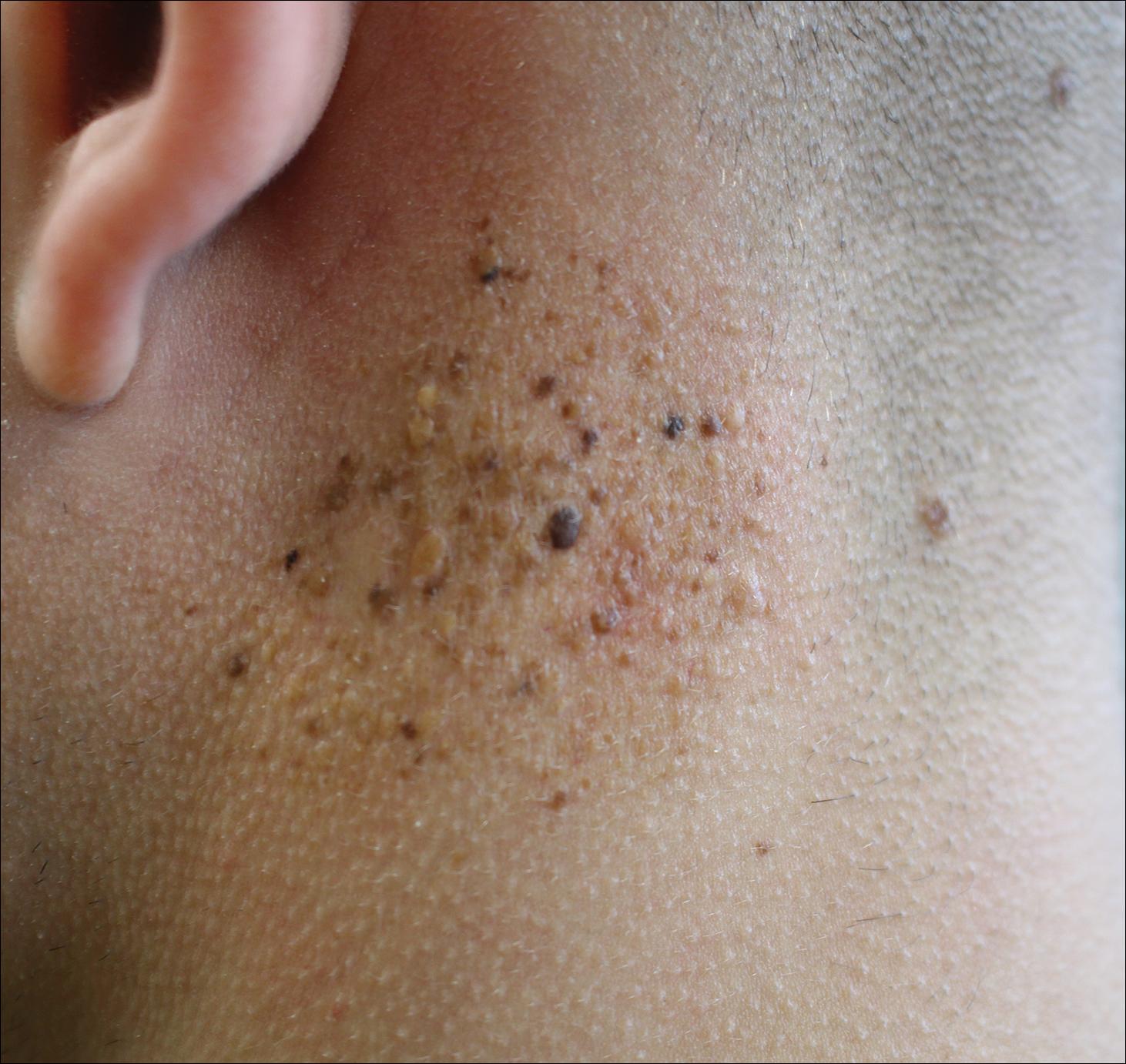Agminated Heterogeneous Papules On The Neck Mdedge Dermatology