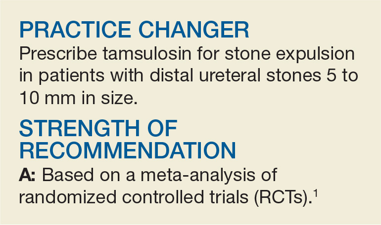 Tamsulosin For Patients With Ureteral Stones Clinician Reviews