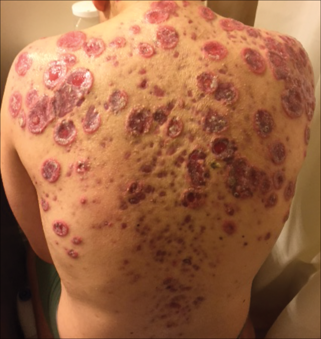 Disfiguring Ulcerative Neutrophilic Dermatosis Secondary To Doxycycline And Isotretinoin In An Adolescent Boy With Acne Conglobata Mdedge Dermatology