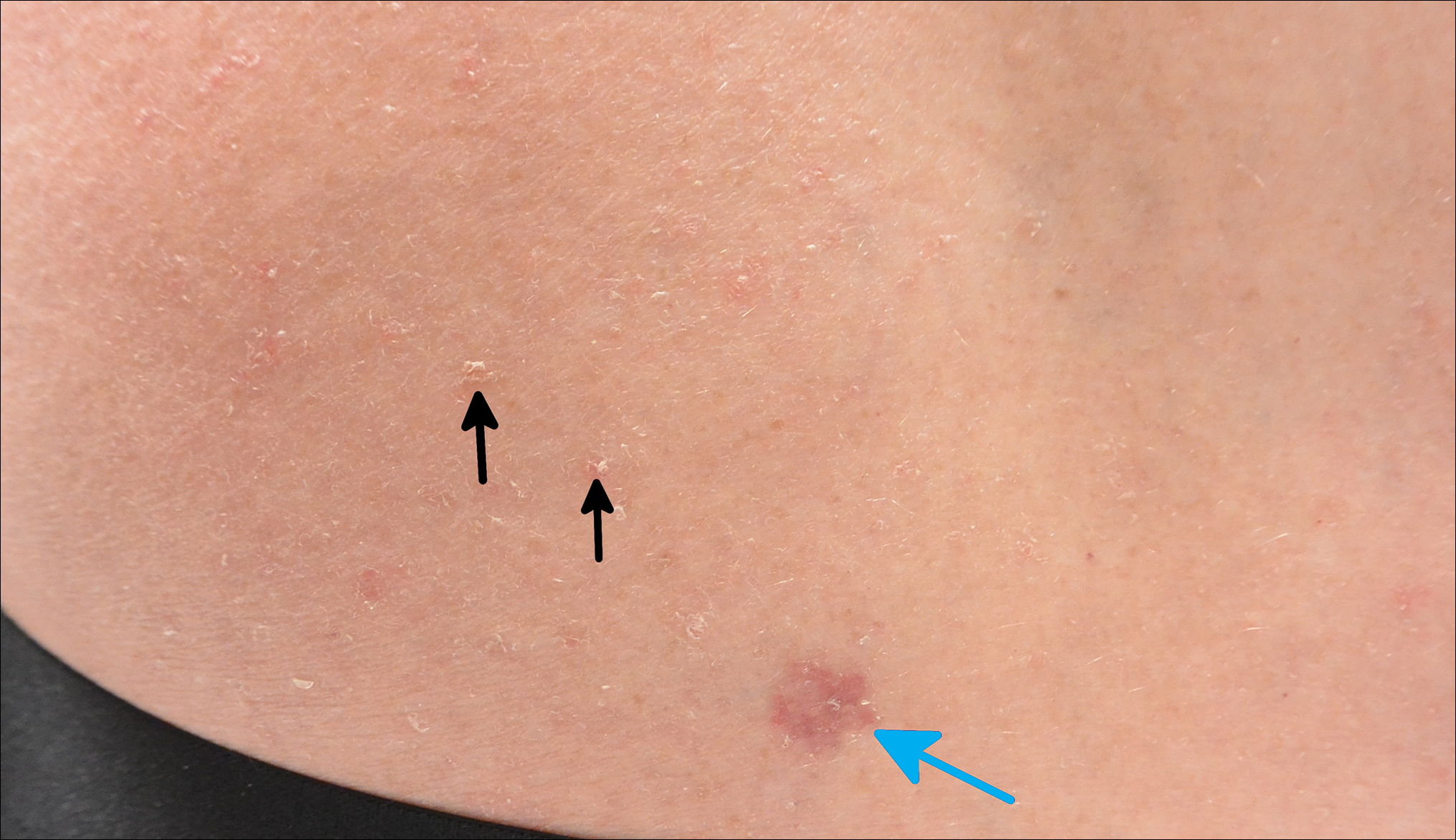 Scaly Pink Patches Differentiating Psoriasis From Basal Cell Carcinoma Mdedge Dermatology