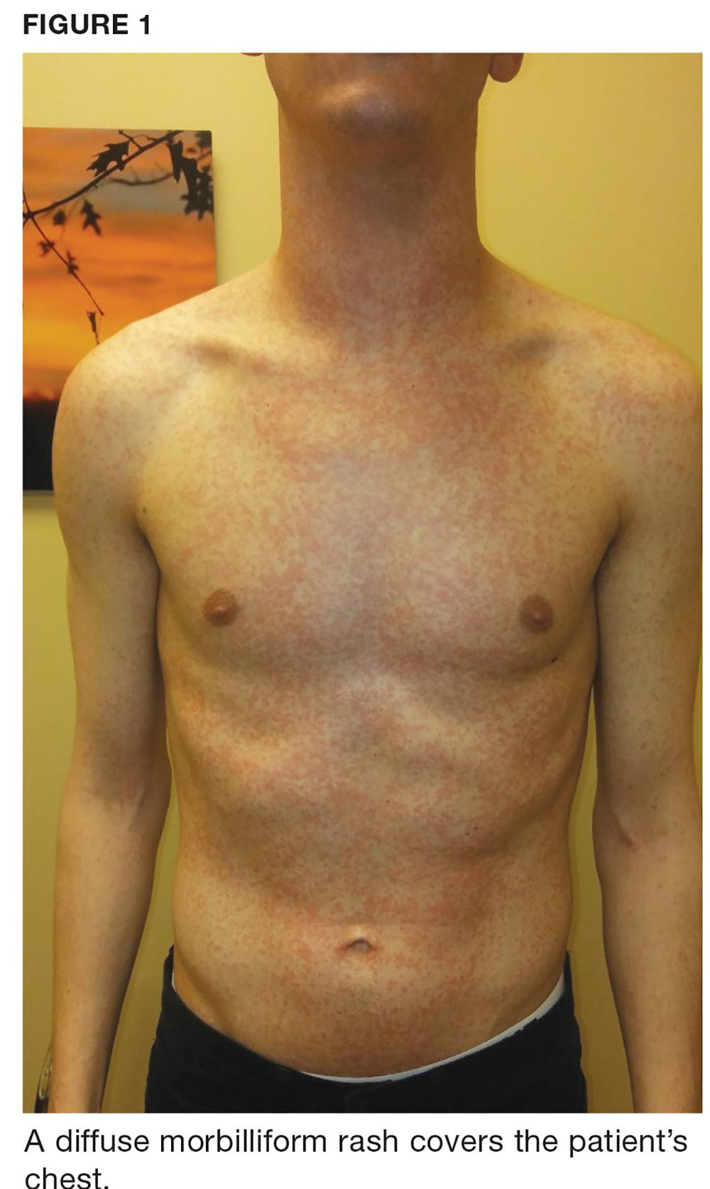 A diffuse morbiliform rash covers the patient's chest.