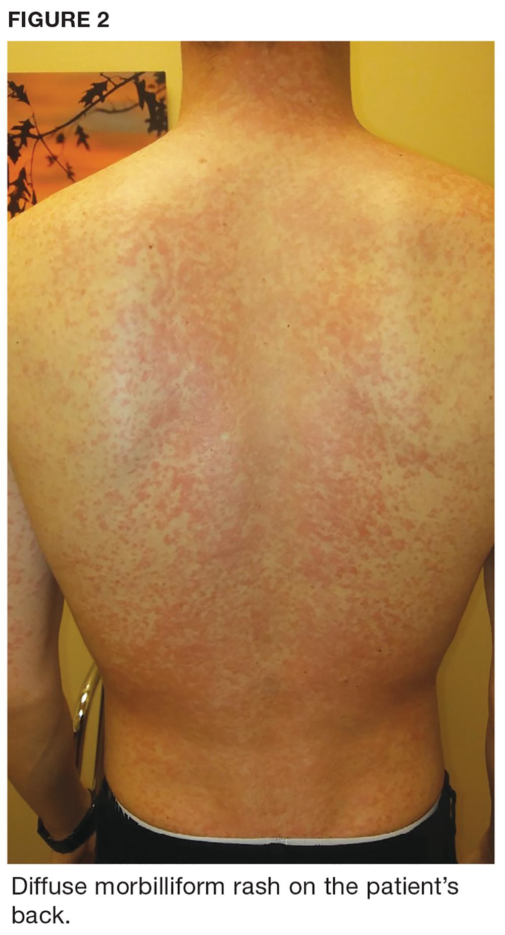 Diffuse morbiliform rash on the patient's back.