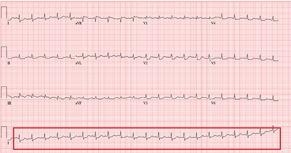 What Do You See in This ECG?