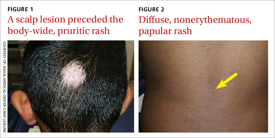 A scalp lesion preceded the body-wide, pruritic rash