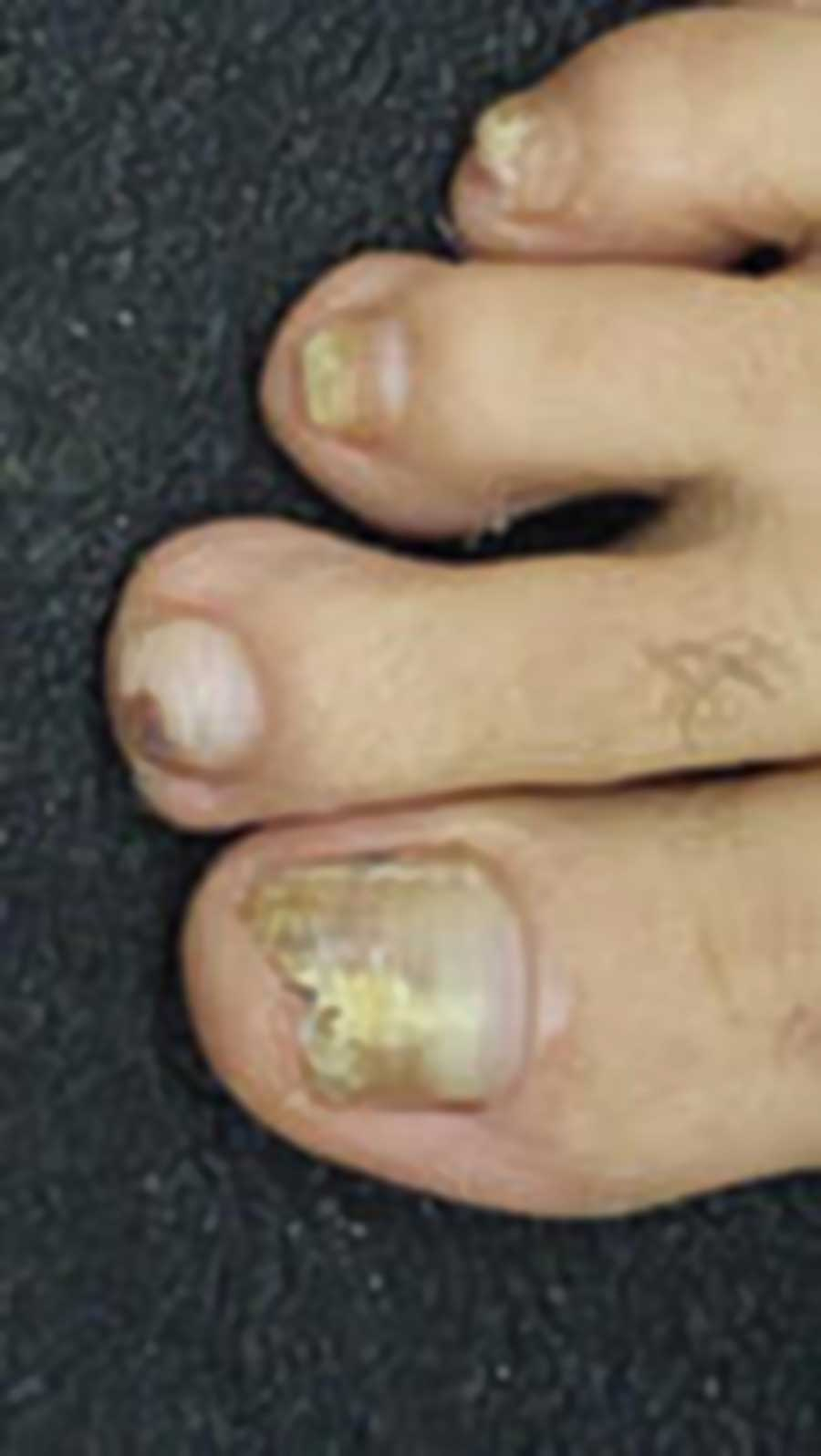 This 48-year-old man mentions that eight of his 10 toenails are yellowed and thickened, with multiple focal areas of breakage on the ends of the nail plates. No changes are noted on his fingernails. The surrounding skin on his feet and hands is within normal limits, except for a rim of faint scaling around the periphery of both feet. The latter is KOH positive for fungal elements image