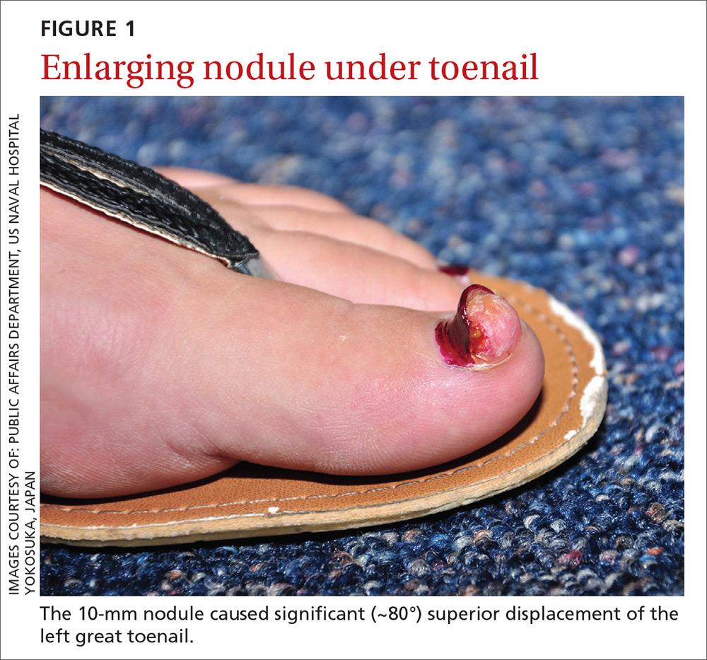 Enlarging nodule under toenail