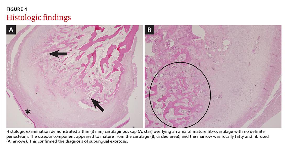 Histologic findings