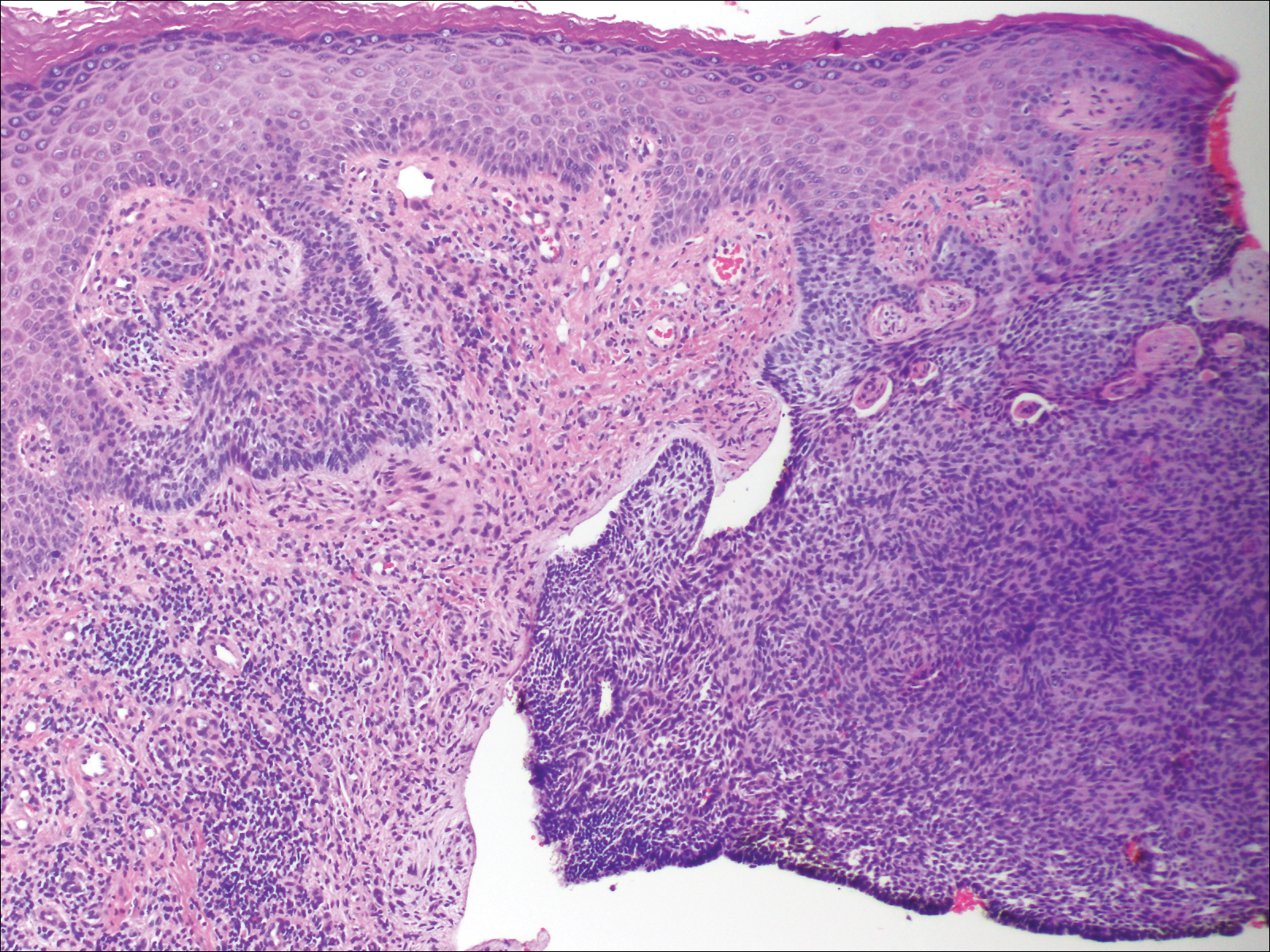 Perianal Basal Cell Carcinoma Treated With Mohs Micrographic Surgery Mdedge Dermatology
