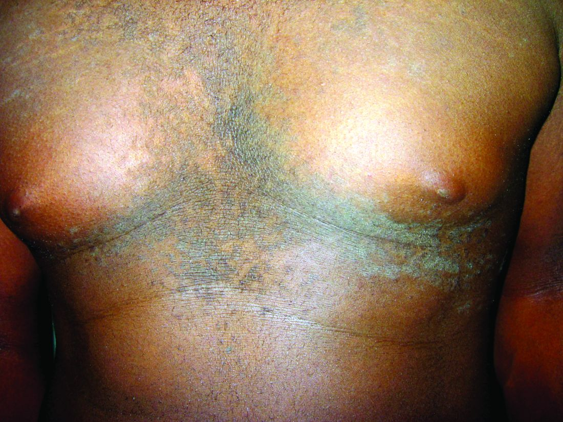 confluent and reticulated papillomatosis vs acanthosis nigricans)