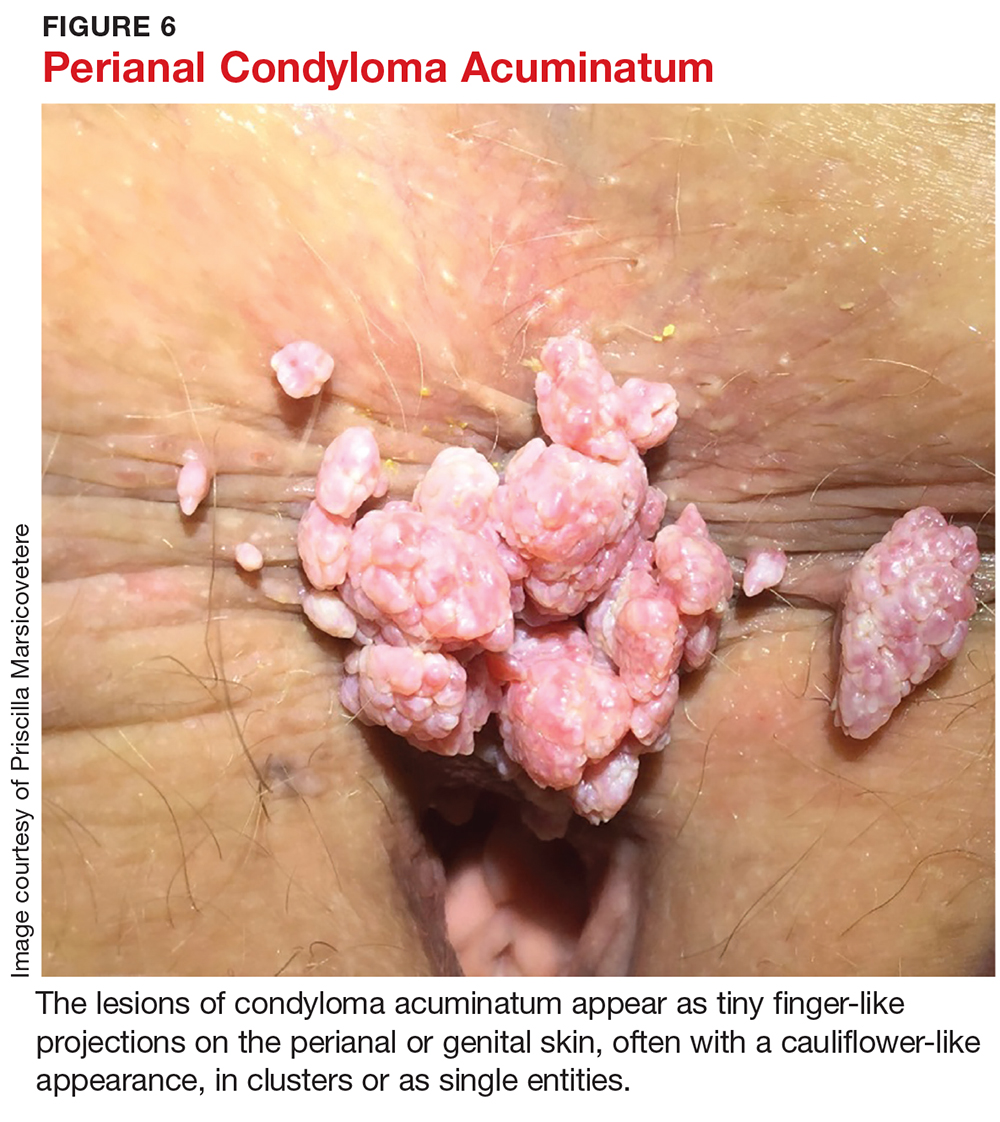 a végbélnyílás tüneteinek condyloma