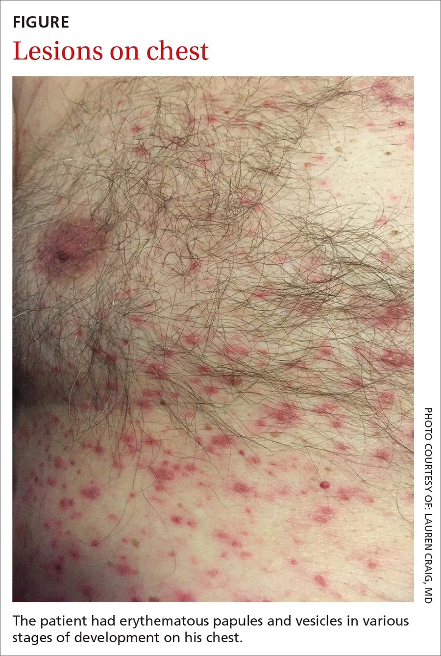 Lesions on chest image