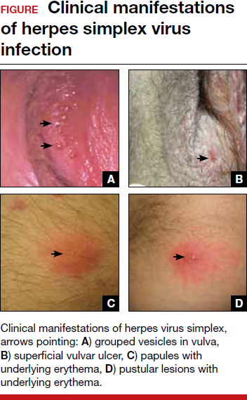 Genital Herpes Diagnostic And Management Considerations In Pregnant Women Mdedge Obgyn