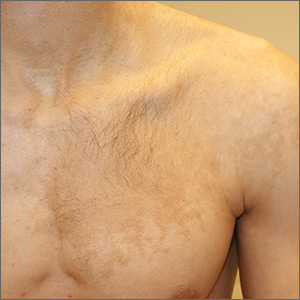 A 19-year-old male college student presents to the student health center with concerns about a rash. He read up on rashes via Google searches and he wants treatment for this rash. He thinks he's had the rash for several years, but got concerned only after