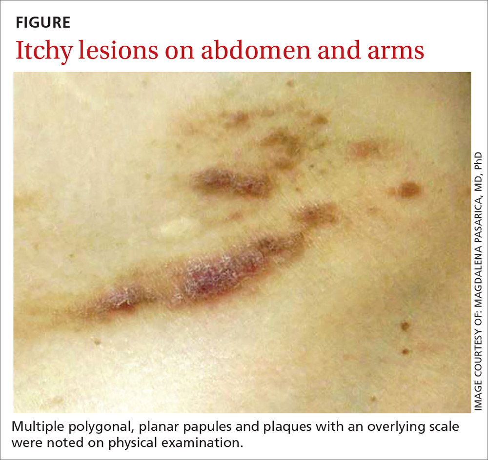 Itchy lesions on abdomen and arms