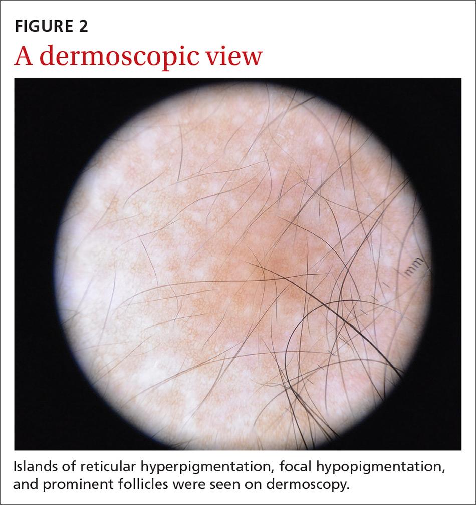 A dermoscopic view