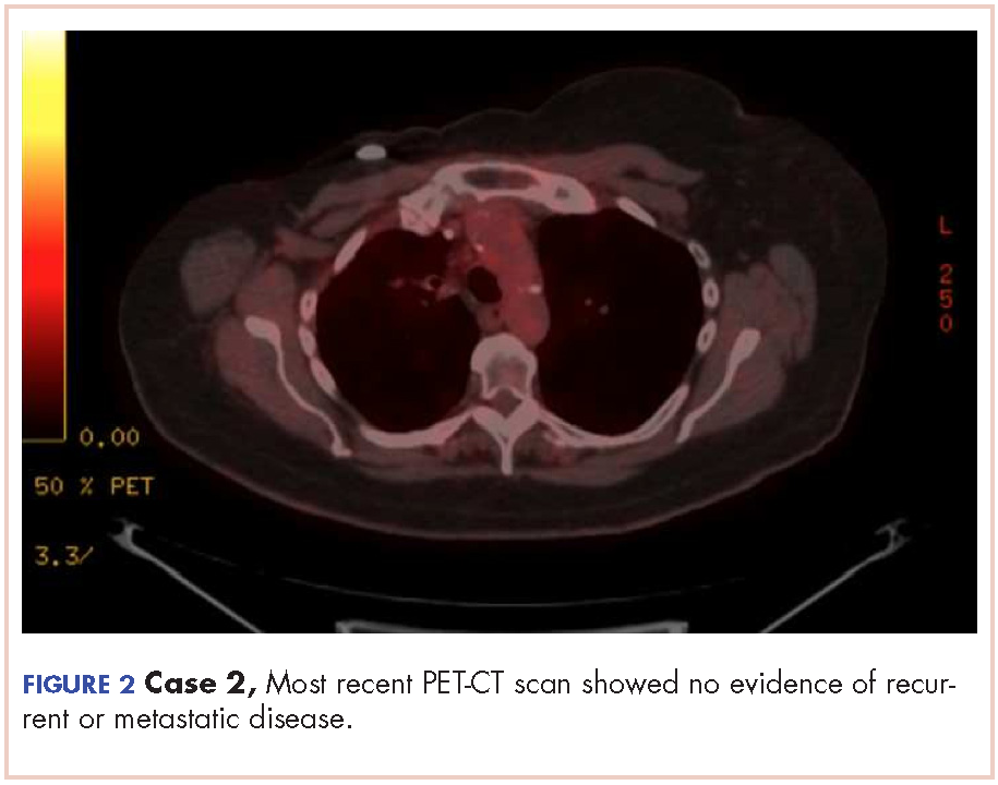 Two Cases Of Possible Remission In Metastatic Triple Negative Breast Cancer Mdedge Hematology And Oncology