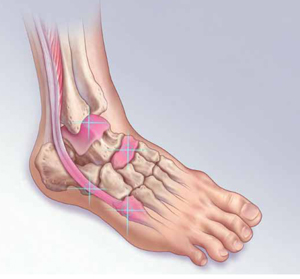 Not Just A Sprain 4 Foot And Ankle Injuries You May Be Missing Mdedge Family Medicine