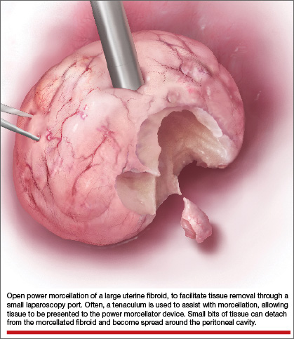 Benefits And Pitfalls Of Open Power Morcellation Of Uterine Fibroids Mdedge Obgyn