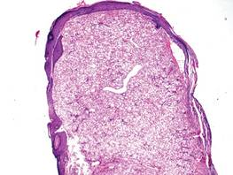 Proliferation of variably sized clear cells of a clear cell fibrous papule with focal epidermal erosion and ectatic vessels (H&E, original magnification ×20).