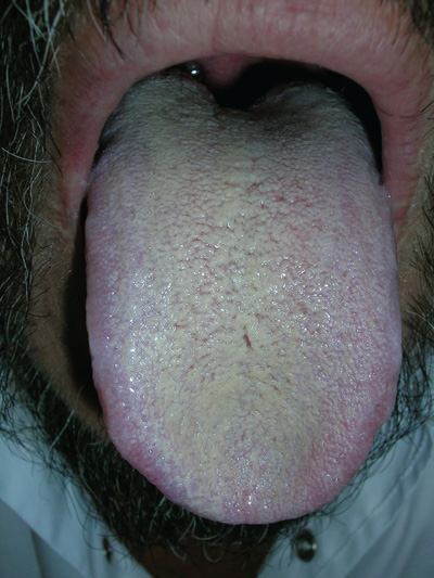 Discoloration of the tongue | MDedge Family Medicine