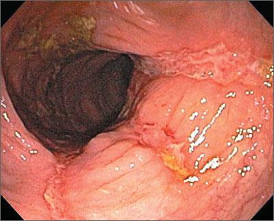 Blood Tinged Diarrhea Mdedge Family Medicine