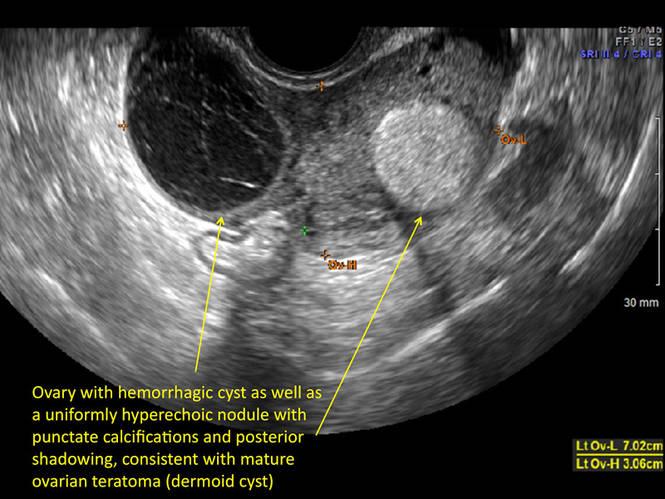 Hemorrhagic ovarian cysts: One entity with many ...
