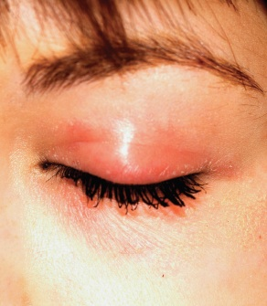 This woman has an itchy rash around both eyes.