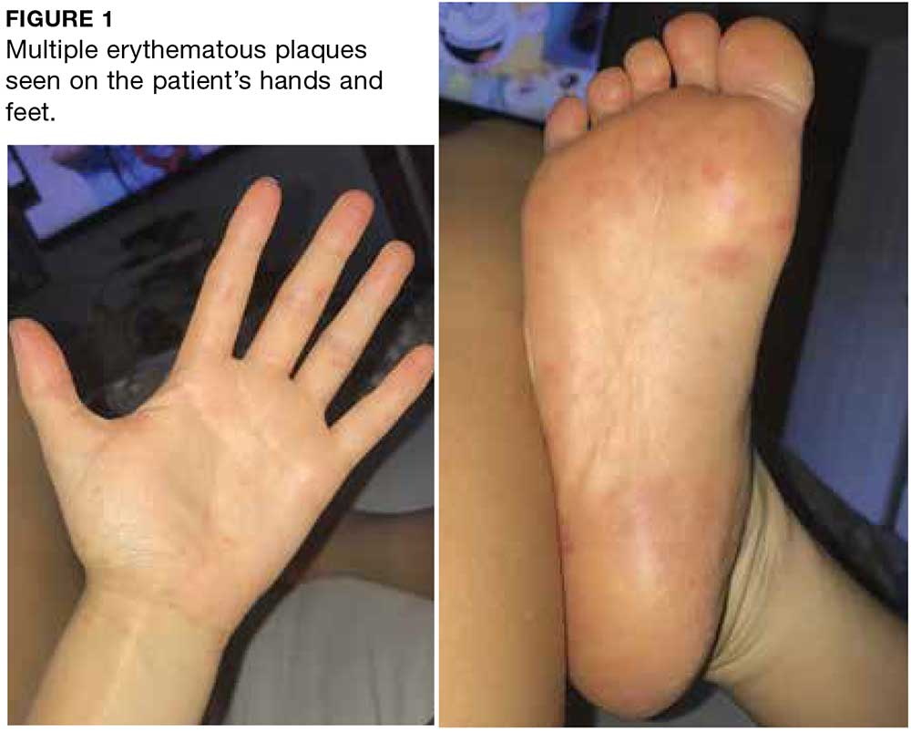 Multiple erythematous plaques seen on the patient's hands and feet.