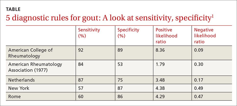 5 diagnostic rules for gout: A look at sensitivity, specificity image