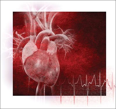 Atrial fibrillation: Effective strategies using the latest tools image