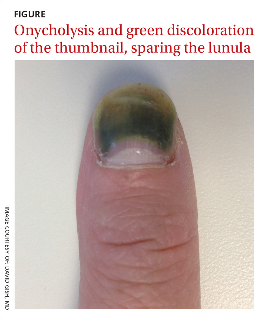 Onycholysis and green discoloration of the thumbnail, sparing the lunula image