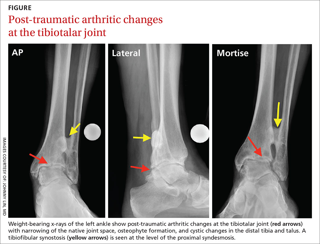 Post-traumatic arthritic changes at the tibiotalar joint image