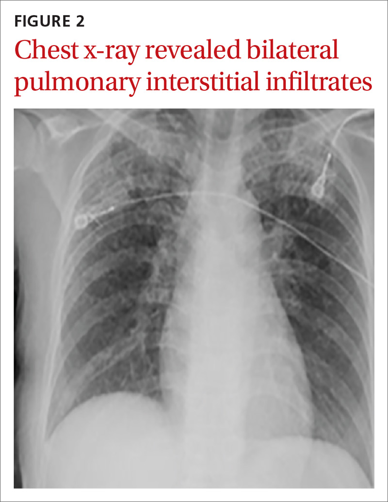 Chest x-ray revealed bilateral pulmonary interstitial infiltrates image